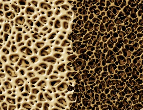 Amgen's Osteoporosis Drug Wins European Nod, With a Heart Warning